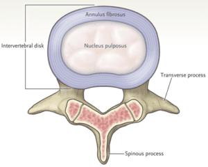 lumbar-spine-disc