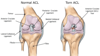 ACL knee injury from hockey