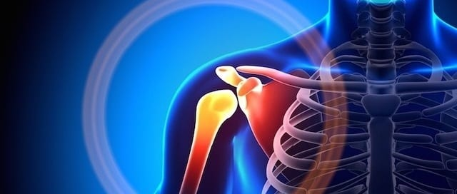 shoulder instability causes pain
