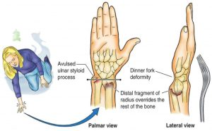Colles or dinner fork fracture of the wrist