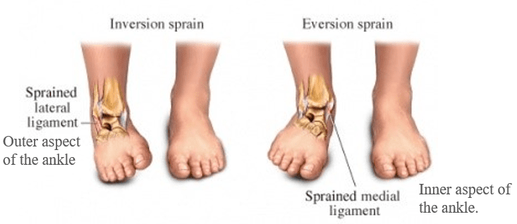 Inversion and Eversion ankle sprains