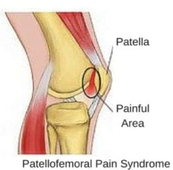 knee pain from PFPS