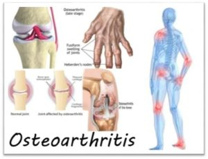 osteoarthritis can be relieved by Physiotherapy