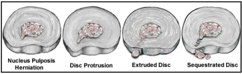 types of lumbar disc herniation
