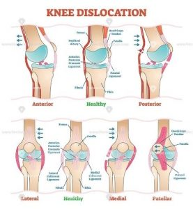 chart showing what happens when a knee is dislocated