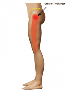 GTPS view of pain down the side of leg