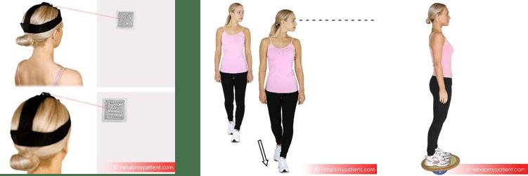 vestibular exercises for concussion