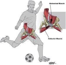 Groin strain can occur from an awkward kicking motion