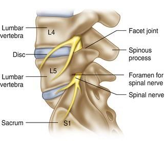 Lumbar vertebrae and joints